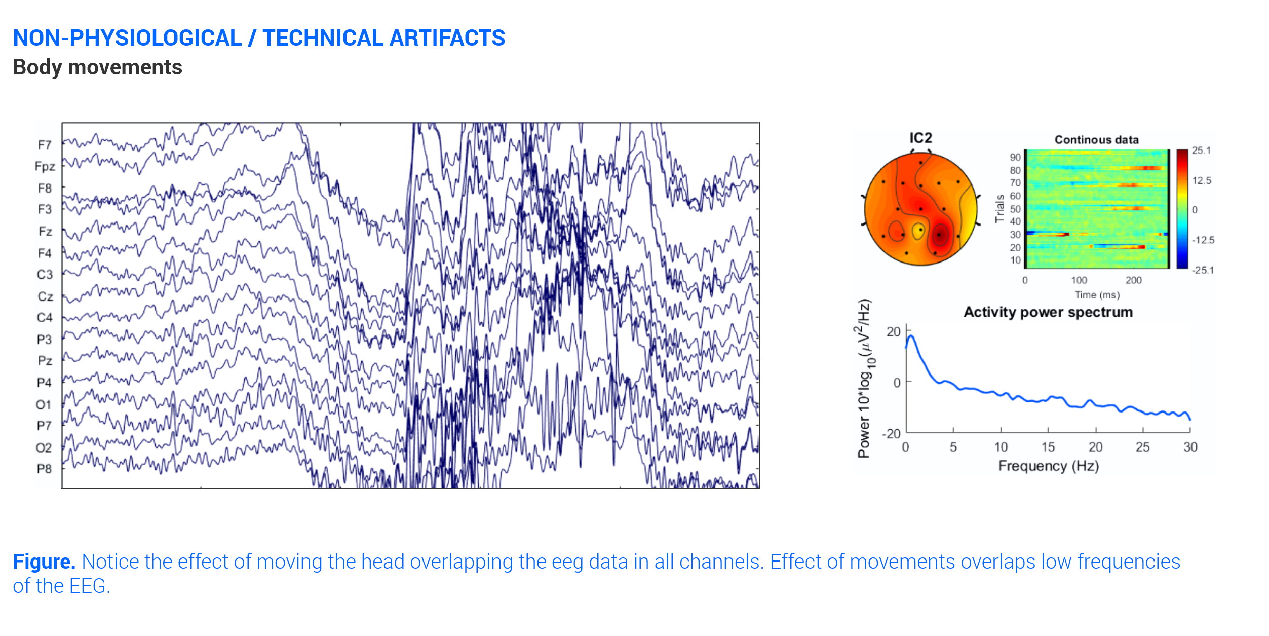 graph on eeg artifacts fue to body movements
