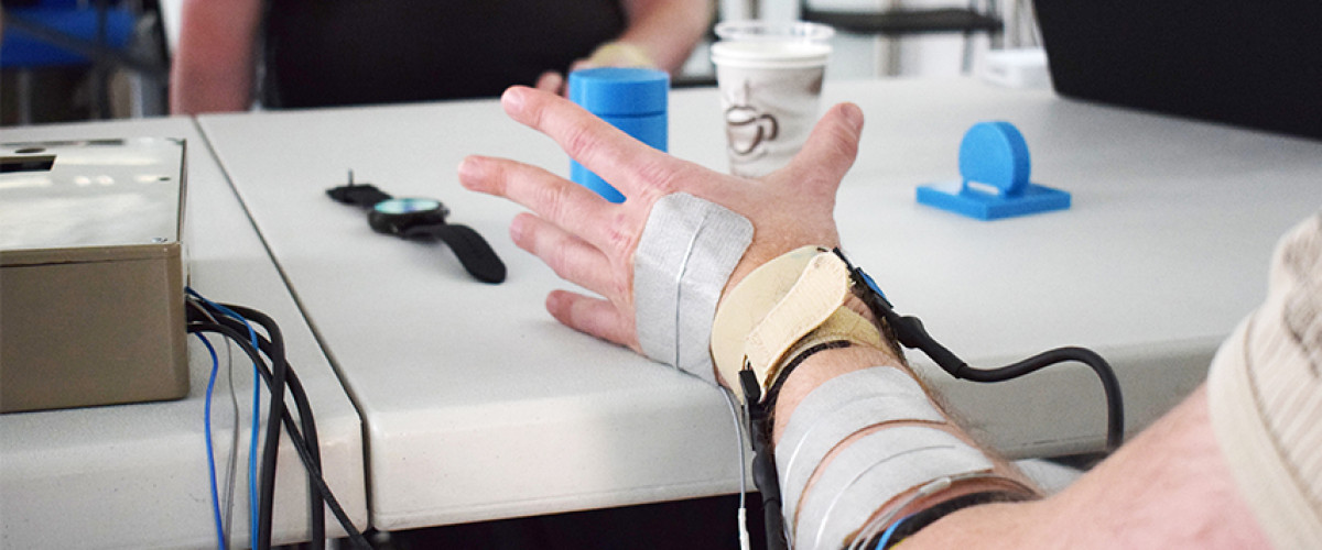Patient or person with tetraplegia with spinal cord injury using brain-controlled neuroprosthetics to be able to move the arms and perform the action of grabbing objects in tasks of daily life thanks to a non-invasive bci with eeg