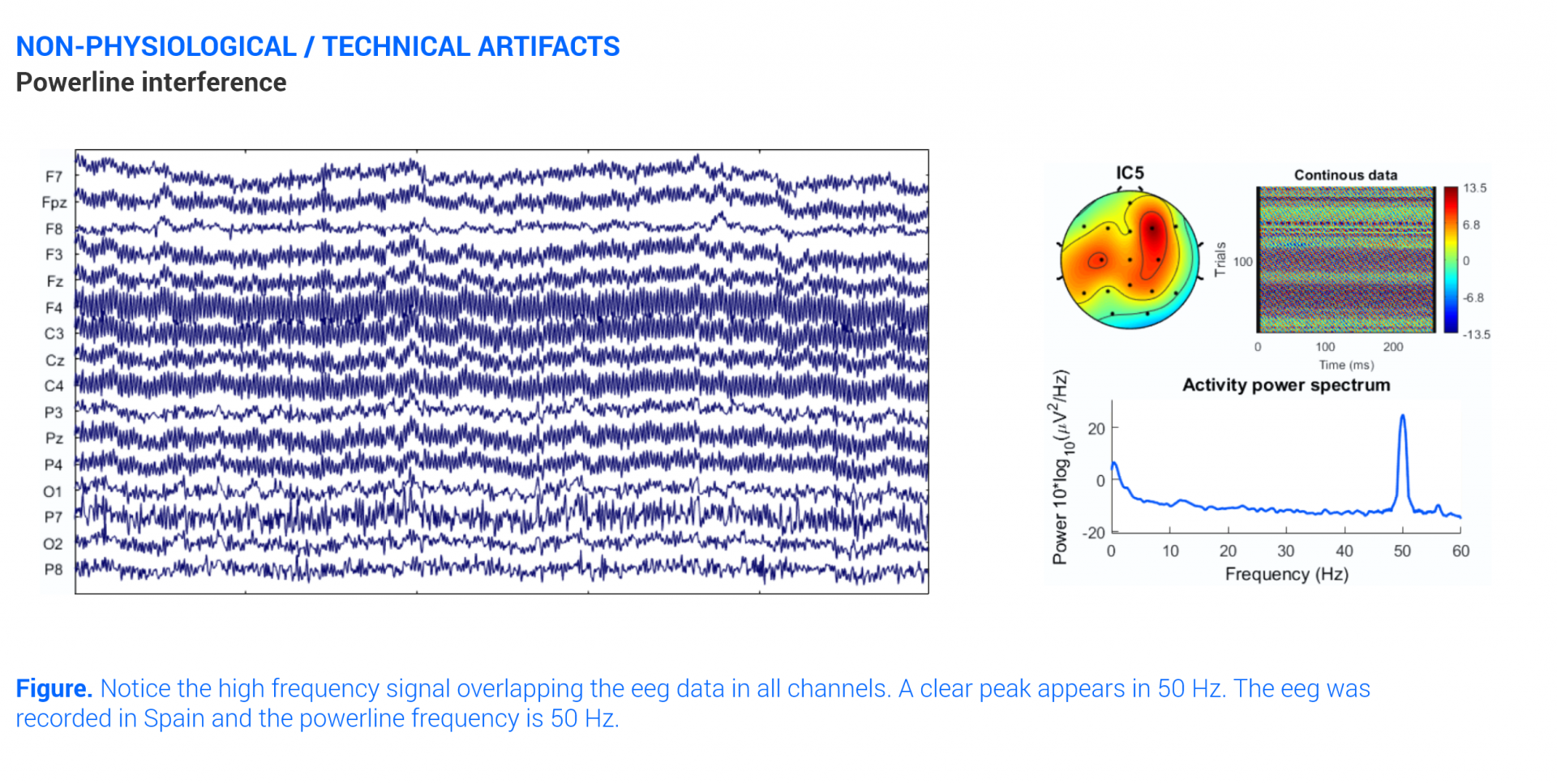 graph on the eeg artifact due to AC interferece