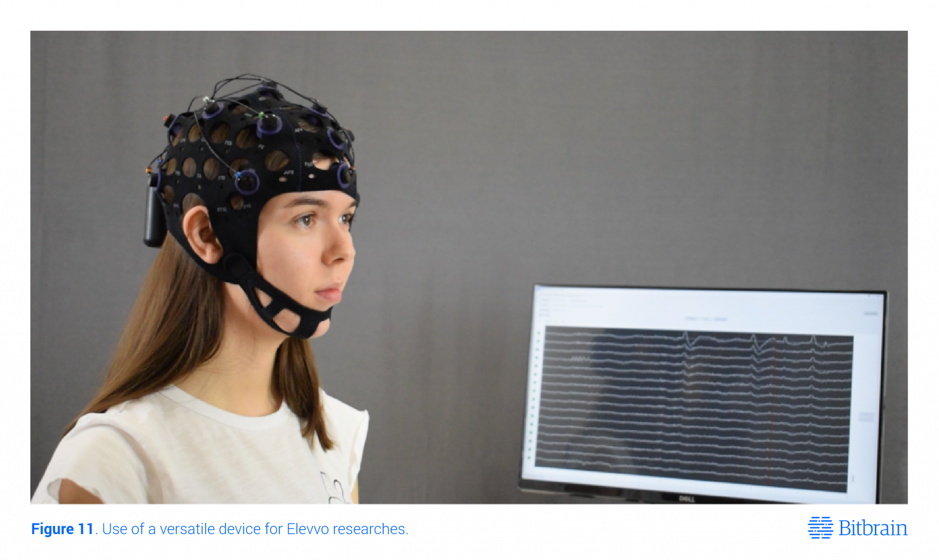 eeg cap for cognitive enhancement