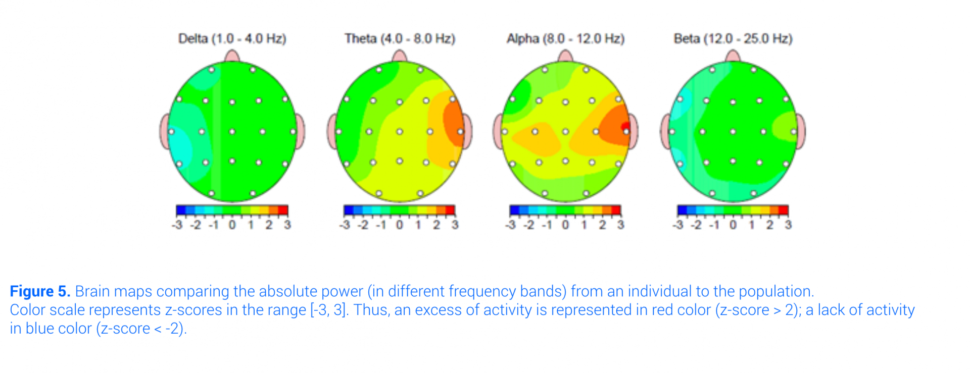 qeeg dimensional brain maps